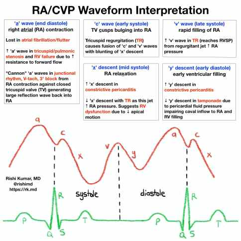 cvp-waveforms.jpg